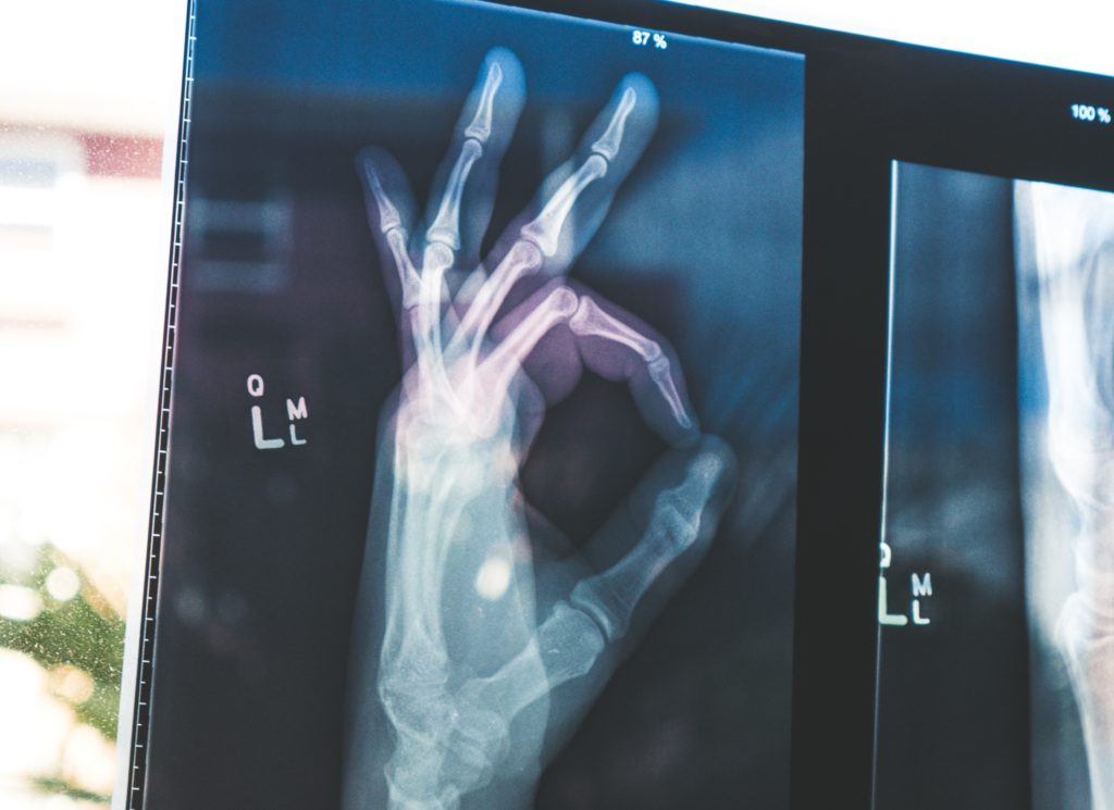 Get more confident when giving presentations: X-ray of hand showing all is okay gesture